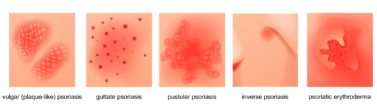 Klinické formy lupénky